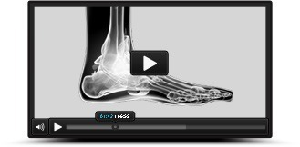 PatientEducationVideos - Aaron M. O'Brien, MD - Orthopedic Foot & Ankle Surgeon